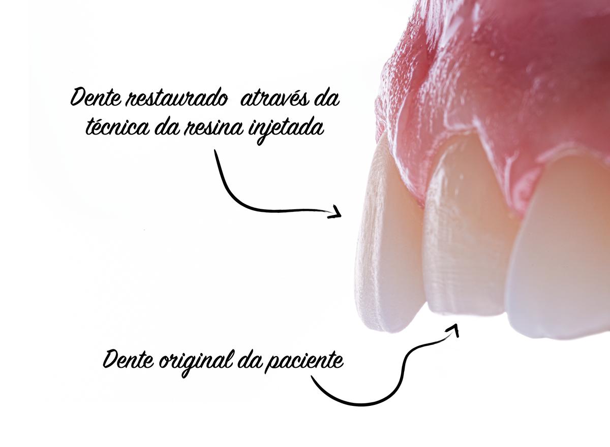 Figura ilustrativa da diferença entre o dente original da paciente e o dente restaurado, evidenciando o aumento incisal e vestibular, responsáveis por promover uma estética mais agradável no sorriso.