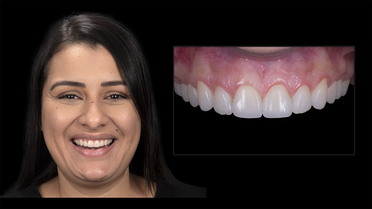 Caso finalizado onde verifica-se a anatomia natural das restaurações obtidas através do enceramento virtual com formas de dentes naturais.