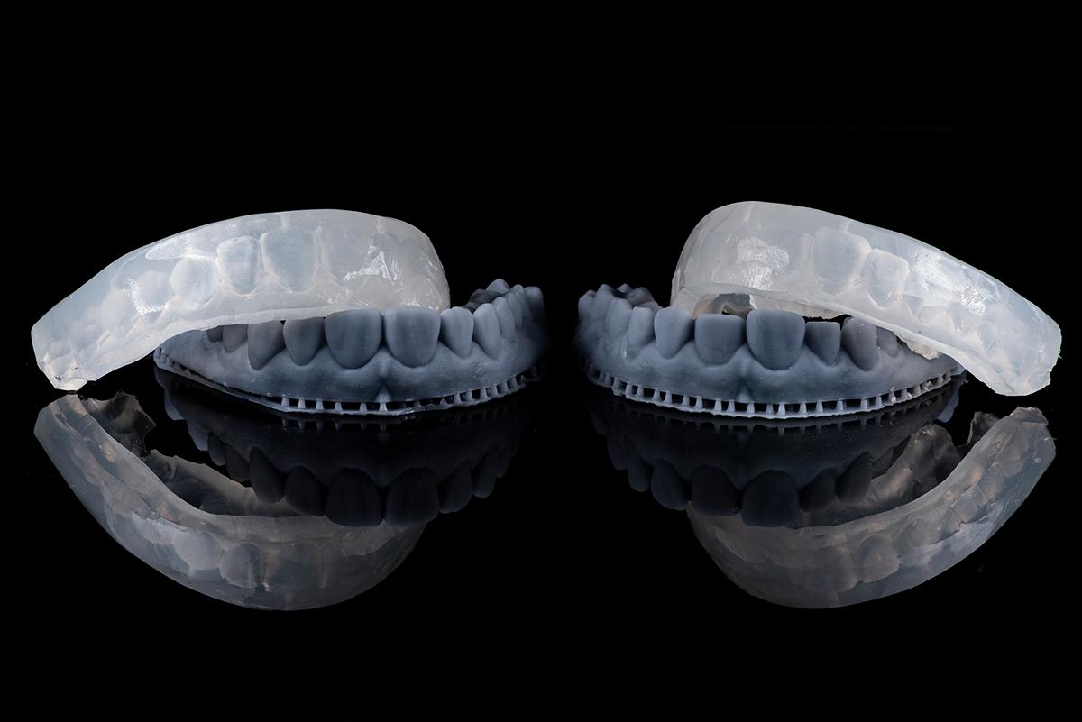 Modelos impressos do enceramento digital e matrizes de silicone transparente (Transil F, Ivoclar Vivadent)