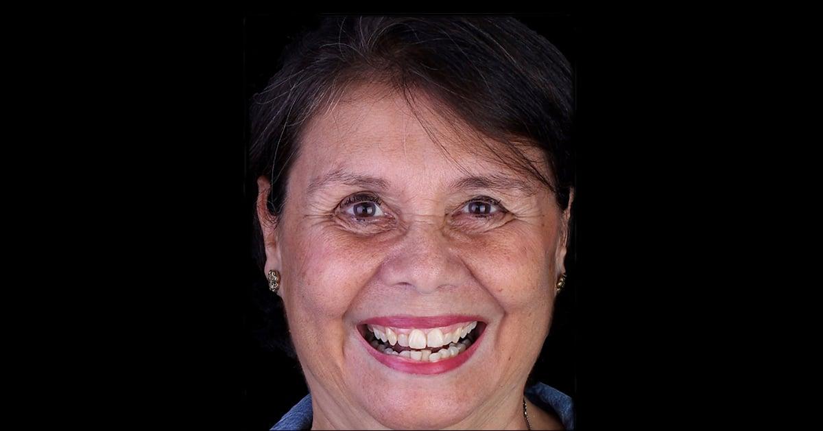 Paciente, mulher, de 60 anos.
