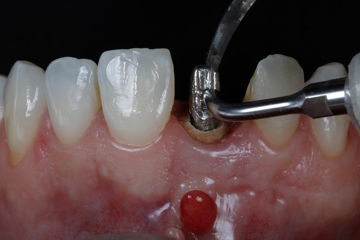 Posicionamento dos insertos de ultrassom, um por vestibular e um por lingual