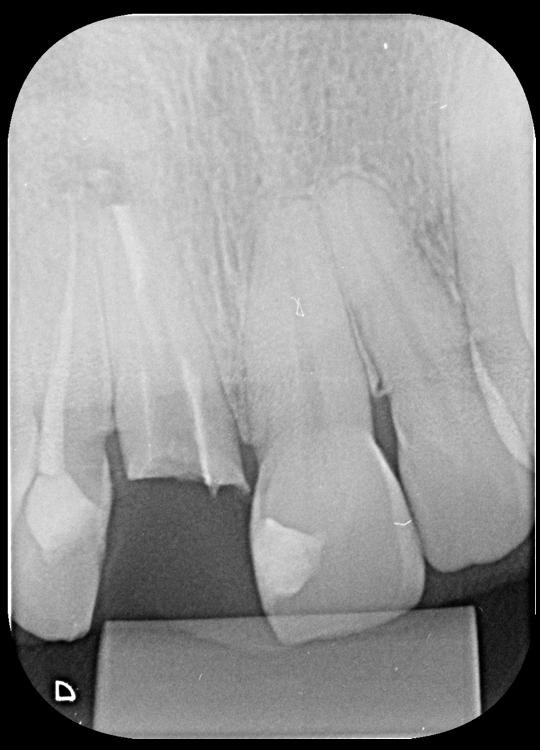 Radiografia periapical do dente 11 após remoção do NMF.