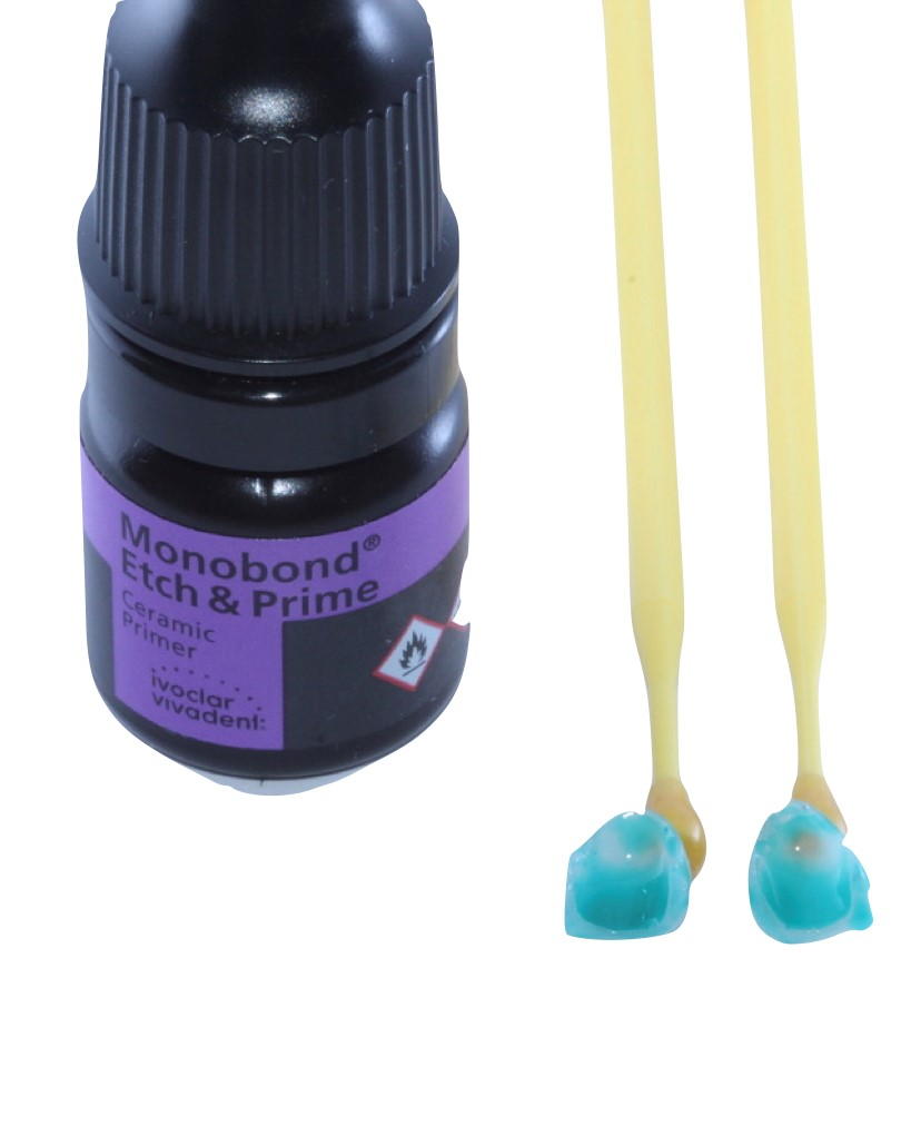Facetas em processo de condicionamento superficial com Monobond Etch & Prime.