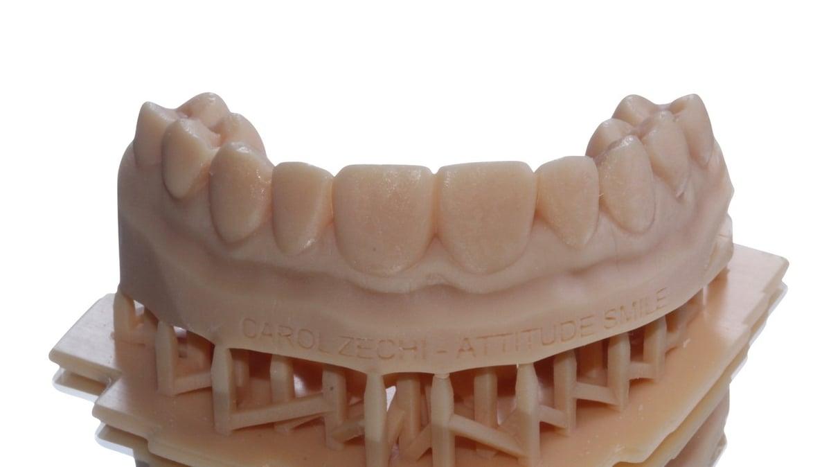 Modelo impresso obtido a partir do planejamento digital dos incisivos centrais e laterais.
