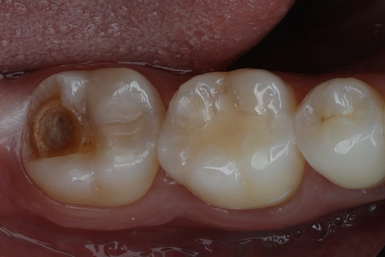 Fig. 1 - Vista oclusal do remanescente dental do elemento 37 (imagem espelho).