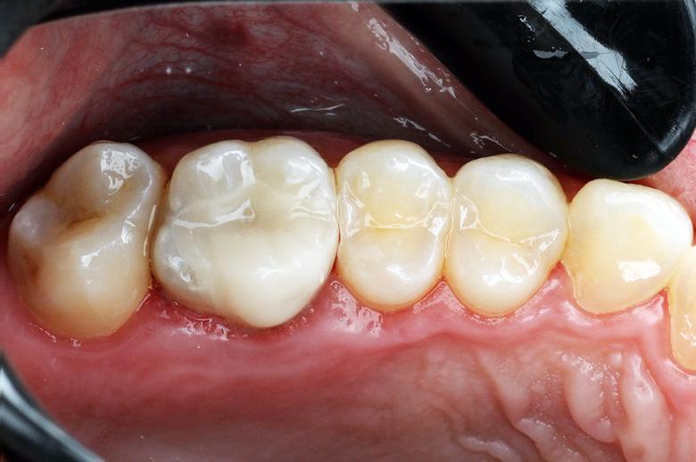 Substrato dental previamente à cimentação e, peça cimentada