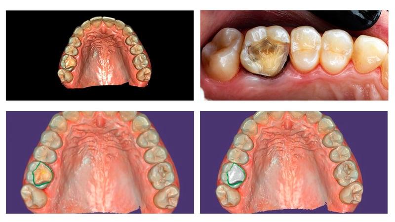 Após a realização do preparo foi realizada a moldagem digital com o scanner intraoral e planejamento da restauração.