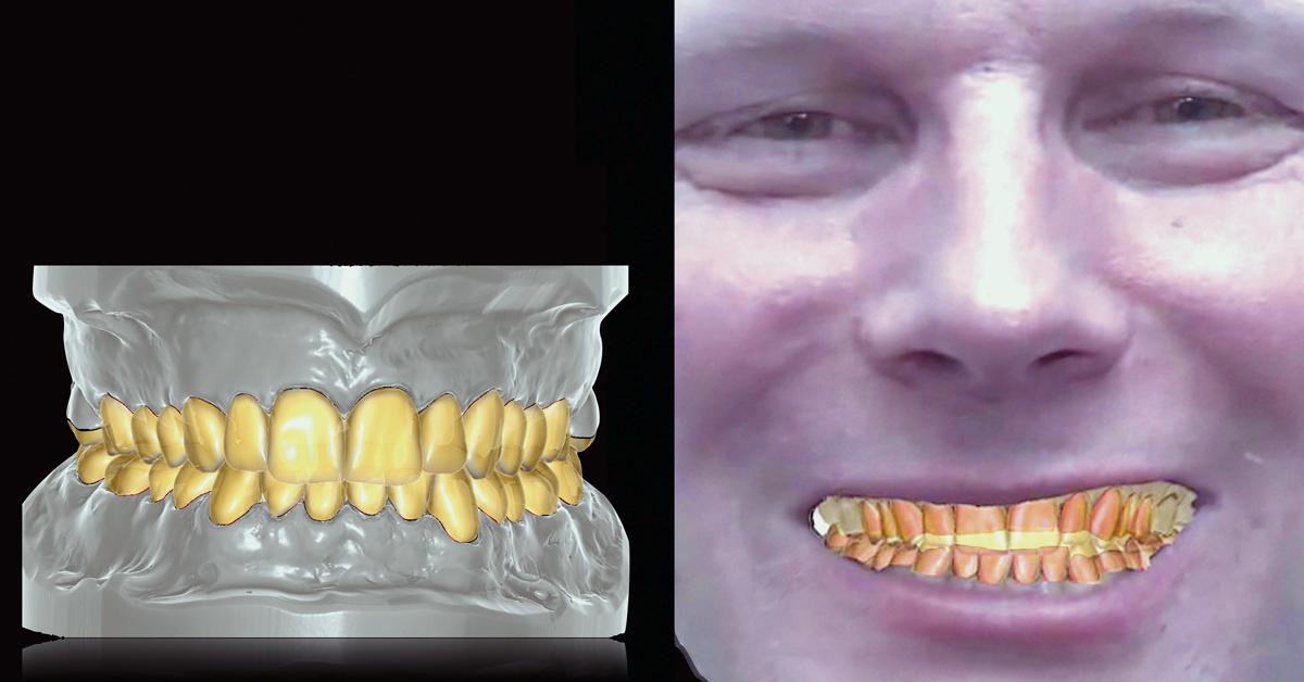 Previous post - Entrevista: el futuro dental será digital y manual