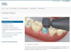 Comment assembler une restauration sur la structure dentaire naturelle