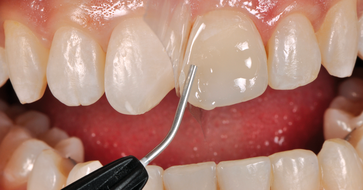 Next post - Practical tips for staying on top of bulk-fill composites