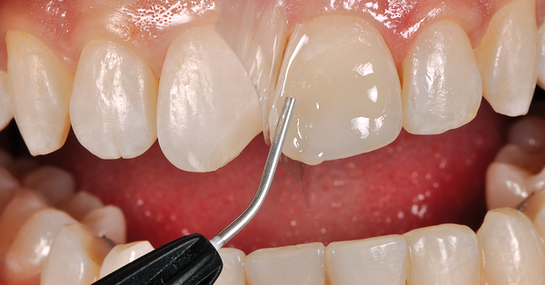 Featured image - Practical tips for staying on top of bulk-fill composites
