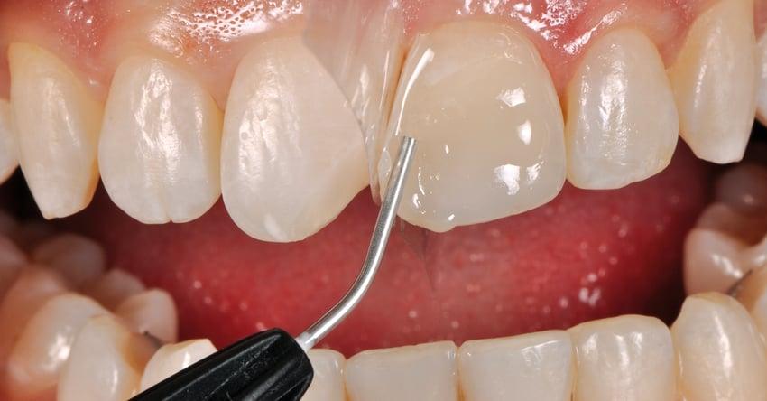 Vielen Zahnärzten fällt es schwer, zu entscheiden, wann sie welches Composite anwenden sollten. Da gibt es fliessfähige versus stopfbare Materialien und konventionelle versus Bulk-Fill-Materialien.