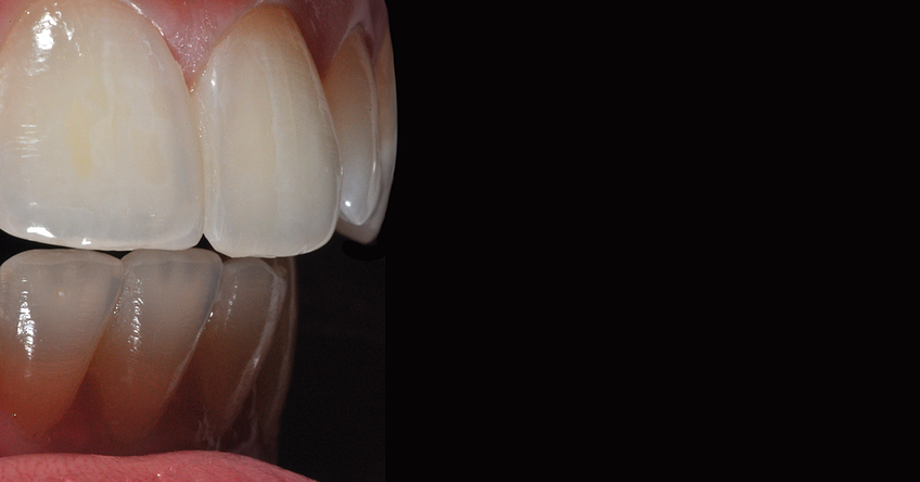 Use a highly esthetic composite resin system for creating anterior restorations, for example, IPS Empress Direct. Copyright Dr. Eduardo Mahn