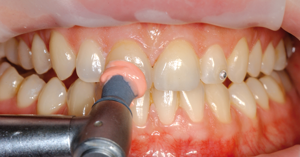 Next post - This is how you maintain the quality of all-ceramic restorations