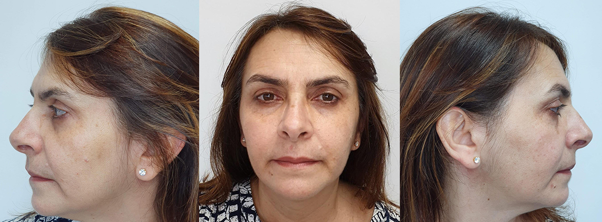 Fotos iniciais de face