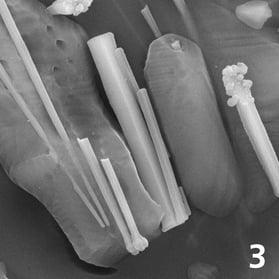 Needle-like oxyapatite: controlled adaptation of translucency and opacity (10,000x magnification)