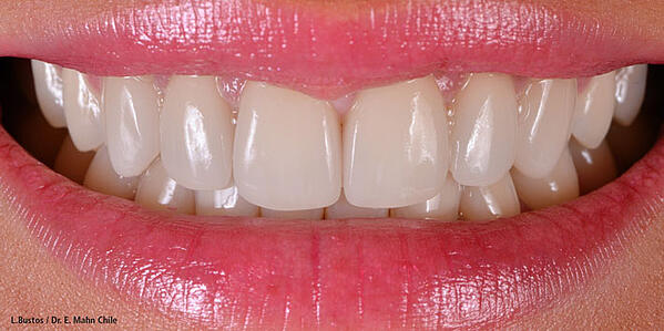 Featured image - Essential elements for a natural bright smile