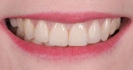 51_IPS_e.max_Ceram_Power_Dentin_3_.jpg