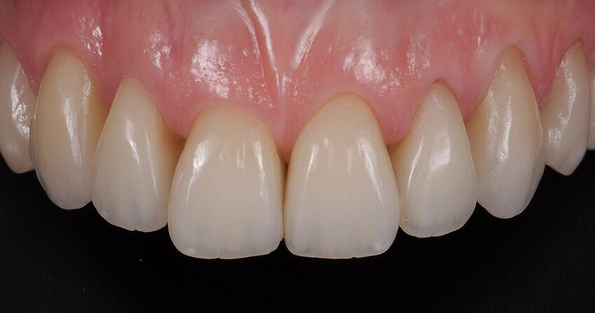 51_IPS_e.max_Ceram_Power_Dentin_4.jpg