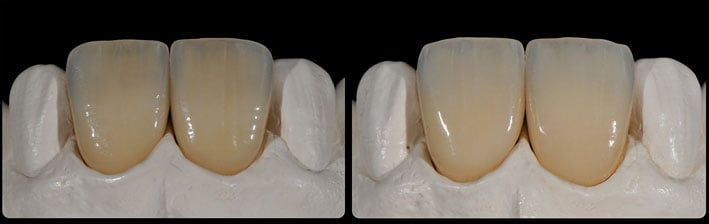 51_ips_emax_ceram_power_dentin_2.jpg