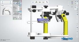 El articulador digital ahorra el laborioso montaje en el articulador.