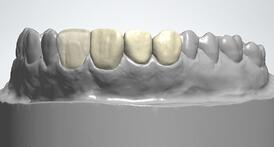 The digital design of restorations is made easy by the software.