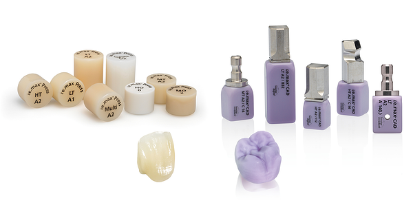 How durable are IPS e.max Press and IPS e.max CAD restorations? Featured Image