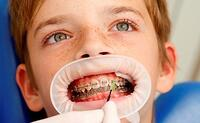 A flowable fluoride varnish protects difficult-to-reach areas of the teeth, for example, in orthodontic patients.