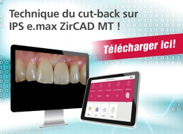 Technique du cut-back sur IPS e.max ZirCAD MT !