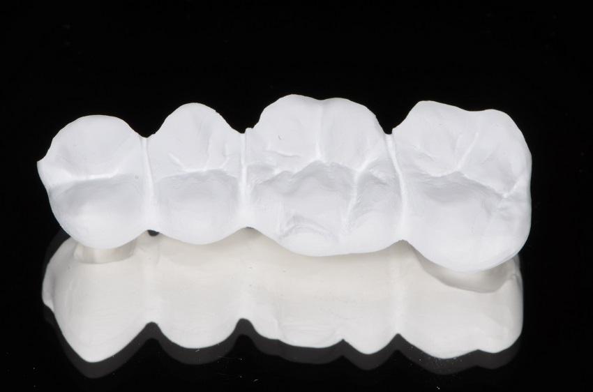 Qu'est-ce que les prothésistes dentaires peuvent apprendre des chirurgiens-dentistes ?