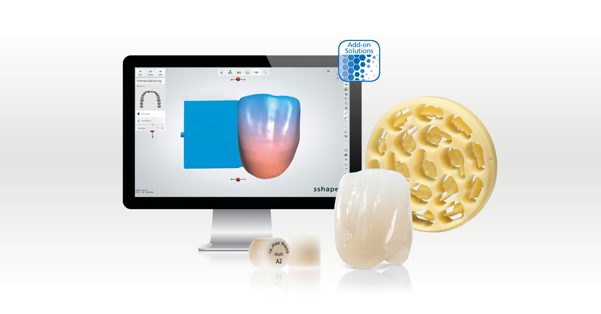 Conventional working methods and CAD/CAM in dental technology: combine classical craftsmanship with digital working steps