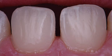 Esthetic Camouflage and Correction of Trauma-Involved Incisor Hypomineralization