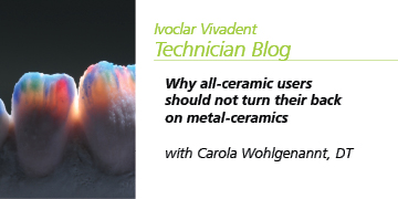 Why all-ceramic users should not turn their back on metal-ceramics