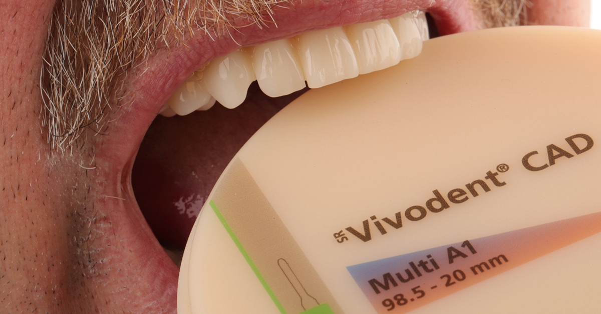 Disruptive Innovation: i vantaggi di Digital Denture per lo studio e il laboratorio