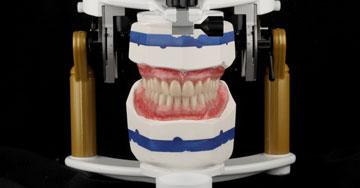 La dent prothétique pour toutes les indications