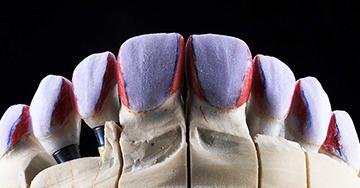Caso Clínico - Tratamento da agenesia dentaria