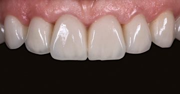 Essential elements for a natural bright smile