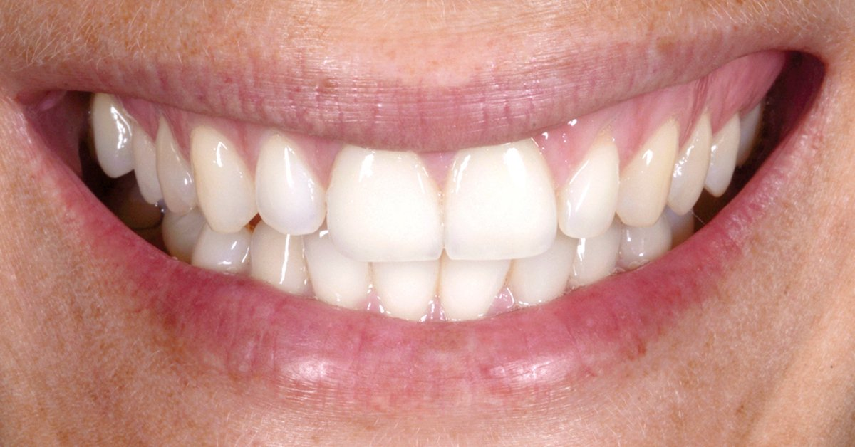 Bleaching con sistema di lacca e senza mascherina, ad esempio per lo sbiancamento dentale associato a faccette