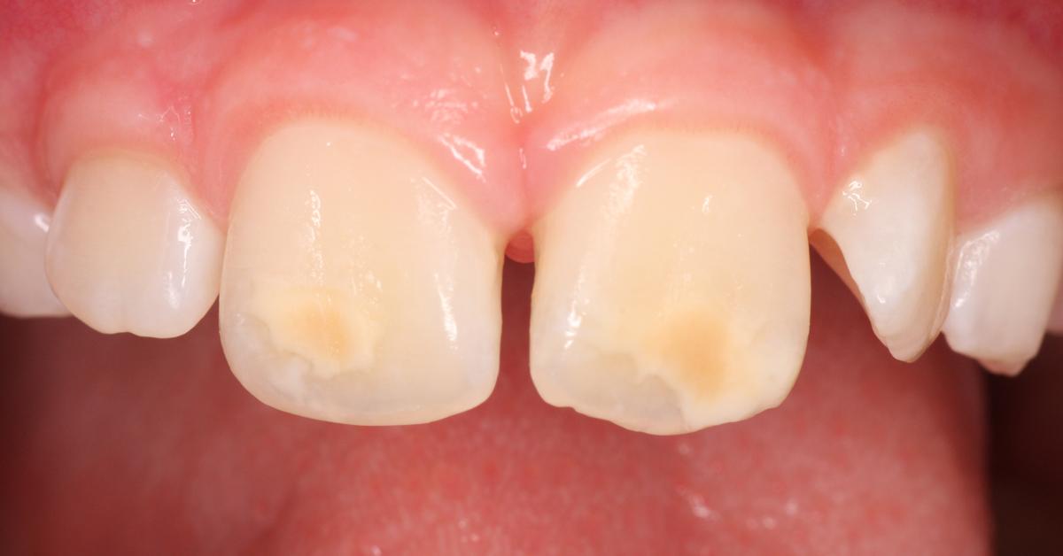 Interview : Hypominéralisation molaire incisive - une épidémie silencieuse chez les enfants