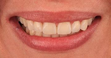 Caso Clínico - Transformação sutil com Resina Composta – Técnica Direta - Dra. Aline B. Santade