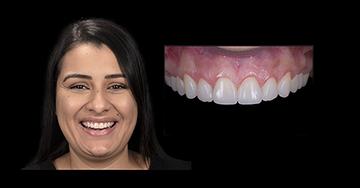 Caso Clínico - Facetas Diretas construídas pela Técnica da Resina Injetada - Dra. Fernanda Camargo e pelo Dr. Felipe Miguel Saliba