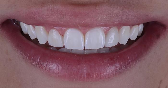 Caso Clínico: Aplicação de primer cerâmico autocondicionante em facetas de dissilicato de lítio para a restauração de dentes conóides - Dr. Júlio Luiz
