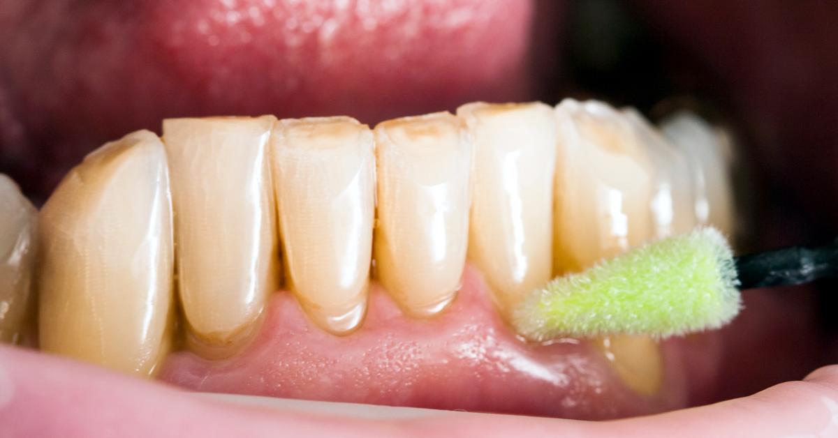 Xerostomia – when the flow of saliva decreases