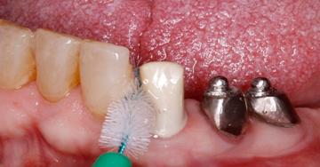 5 conseils pour traiter les mucosites péri-implantaires