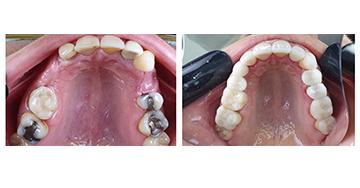 Caso Clínico - Ajuste de cor e troca de prótese parcial - região posterior (Parte II) - Dra. Maria Paula Borghi