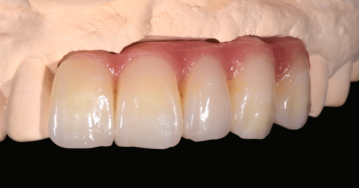 LP_ZirCAD_Prime_Fehmer_Work2