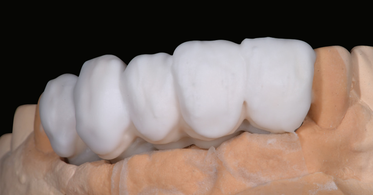 LP_ZirCAD_Prime_Fehmer_Work3