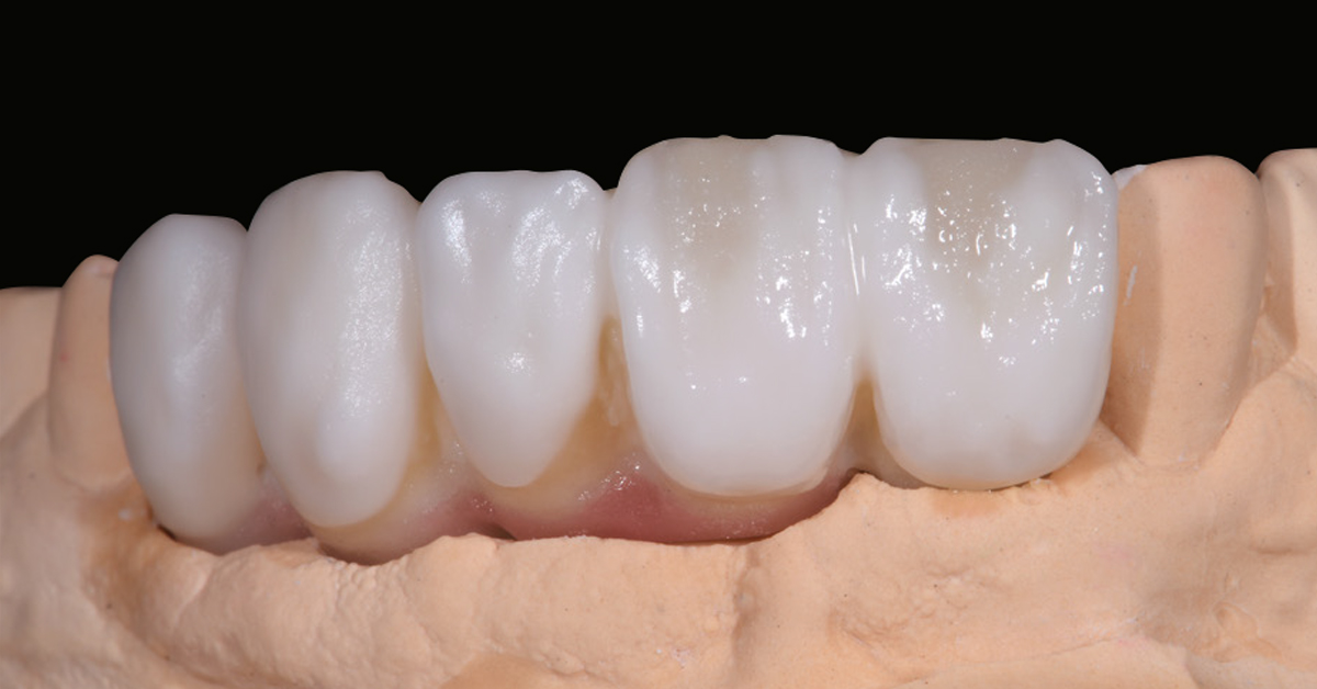 LP_ZirCAD_Prime_Fehmer_Work5