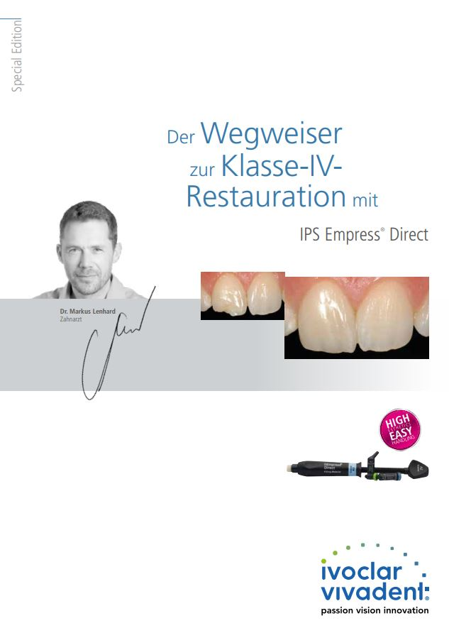 Der Wegweiser zur Klasse-IV-Restauration mit IPS Empress Direct