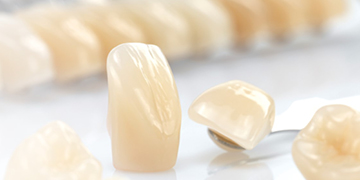 The ideal tooth for implant prosthetics